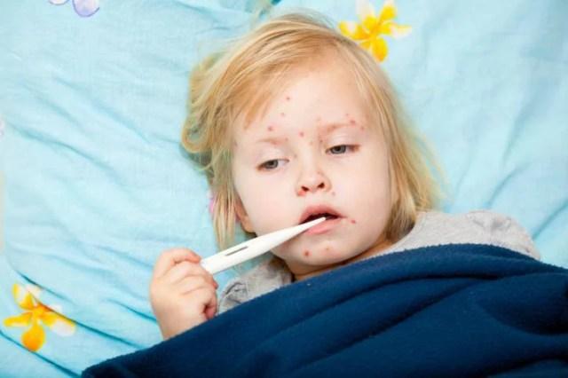morbillo vaccinazione