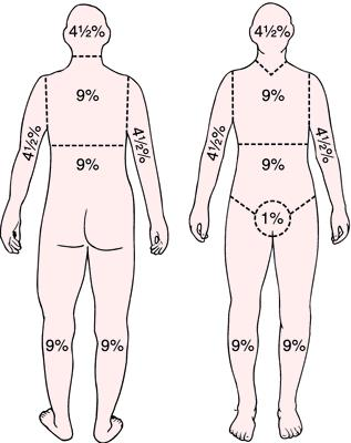 Burns - Dermatology - Medbullets Step 2/3