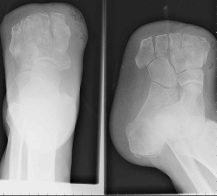 Amputations - Trauma - Orthobullets