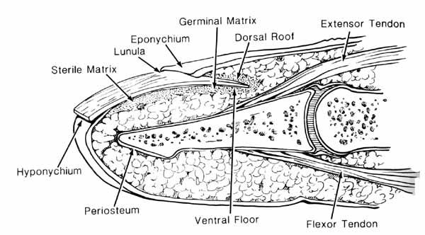 diagram of epidermal inclusion cyst