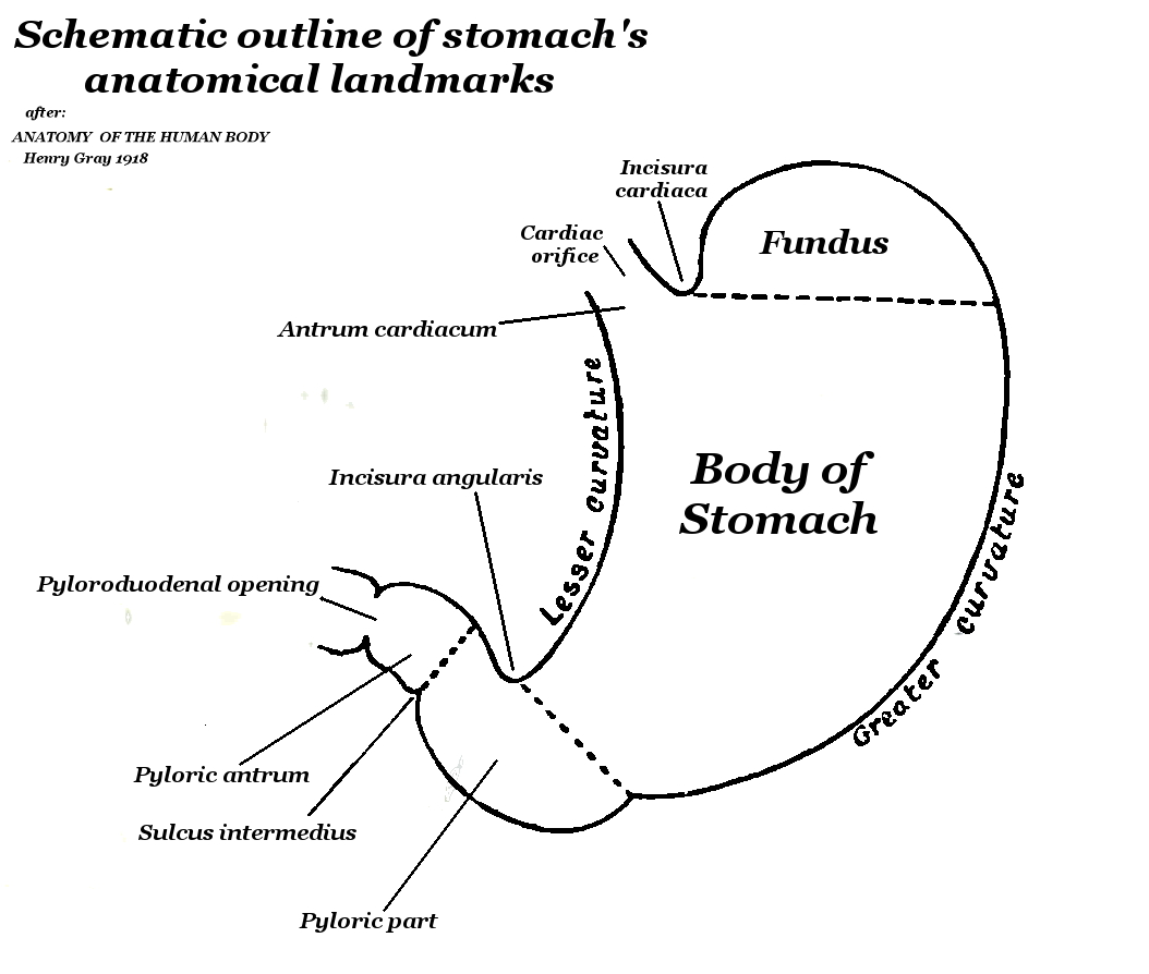 stomch ulcer diagram