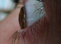 Kontaktlinse 2