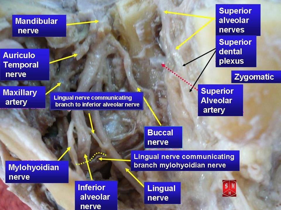 FileMandibular nerve 3jpg - Wikimedia Commons