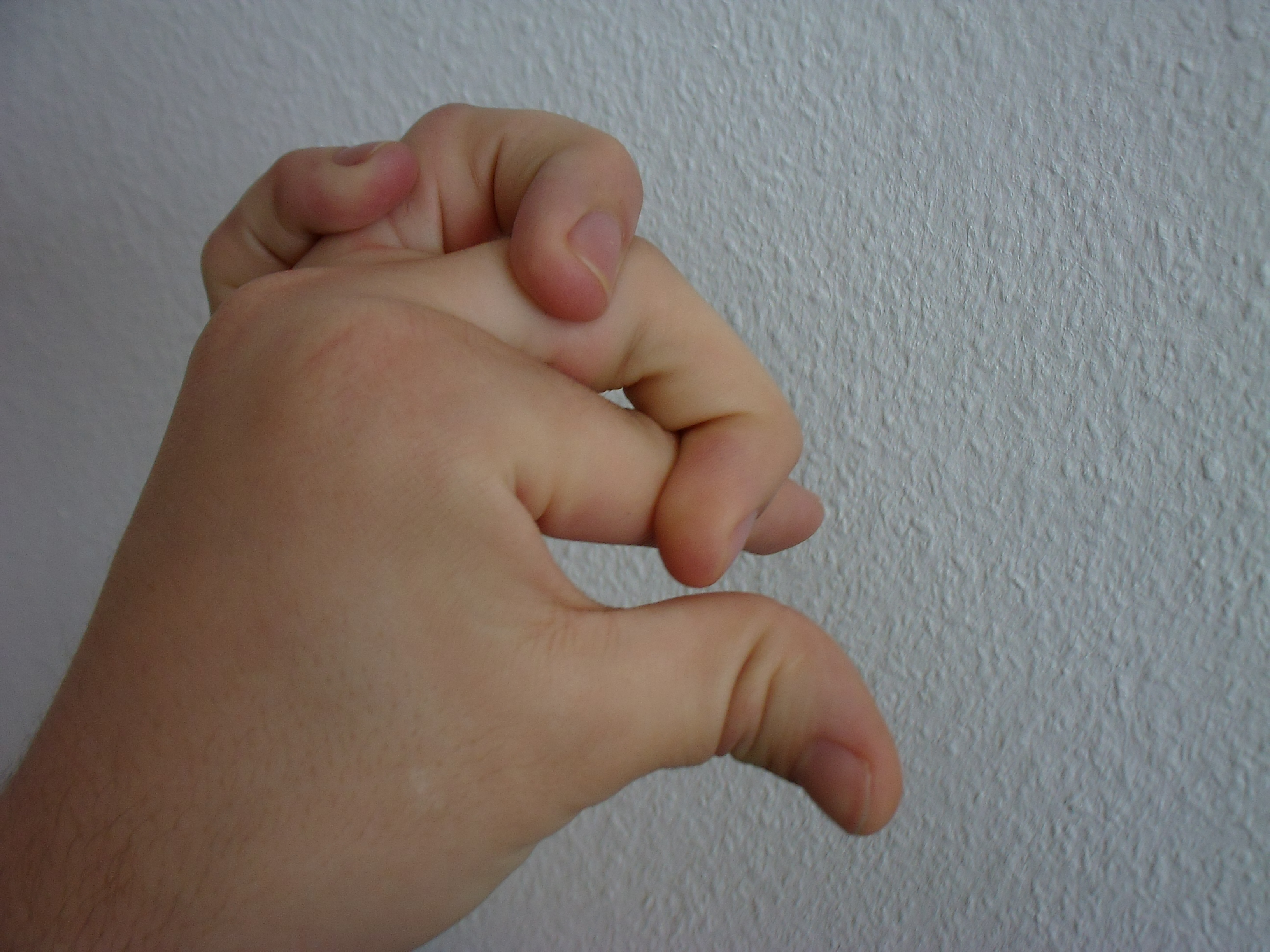 Ehlers Danlos Syndrome File Finger Pile Ehlers Danlos Syndrome Jpg Wikimedia Commons