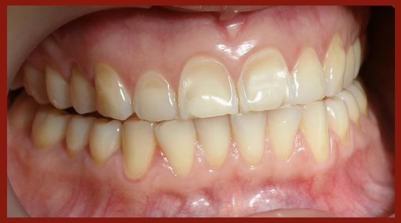 Acid Iphone Wallpaper Tooth Enamel Acid Erosion