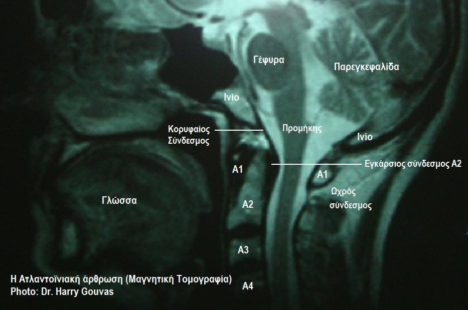 FileAtlanto-occipital jointjpg - Wikimedia Commons