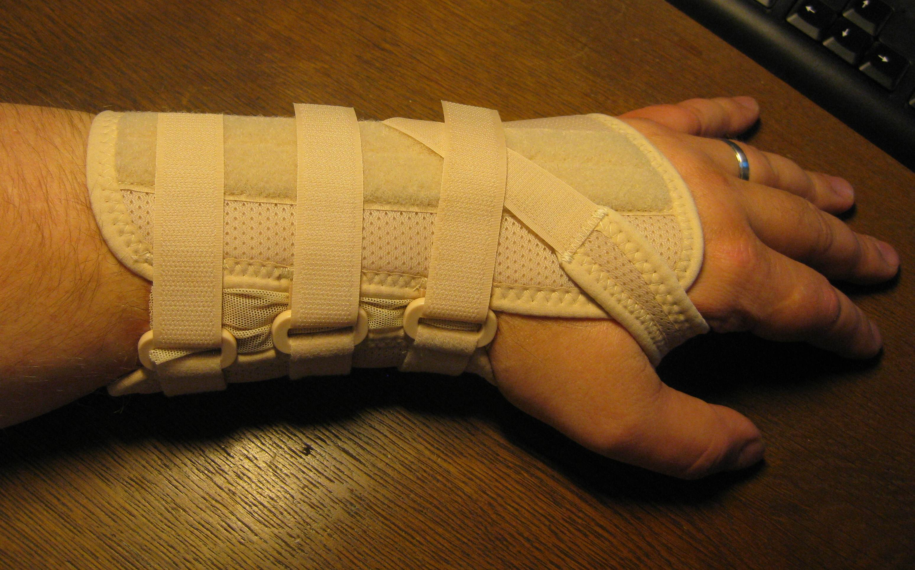 Carpal Tunnel Syndrome Wikiwand