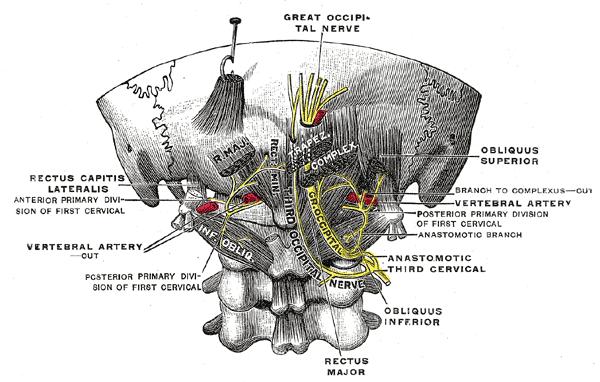 diagram of concussion mri