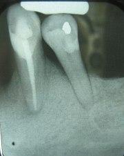 English: Periodontal bone loss shown in X-Ray ...