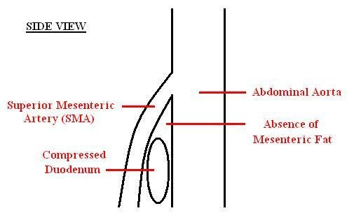 Superior mesenteric artery syndrome - Howling Pixel - sma syndrome