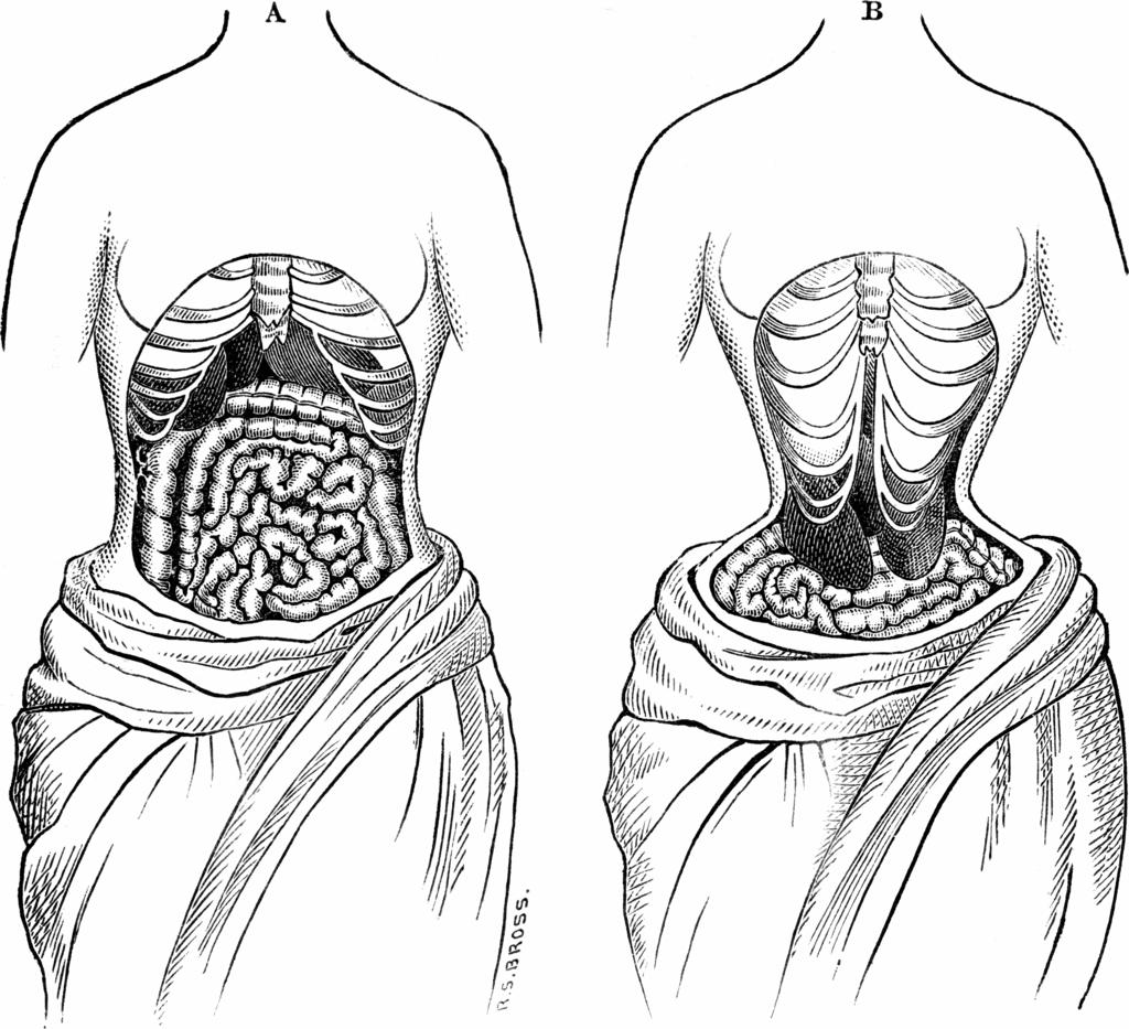 rib damage diagram