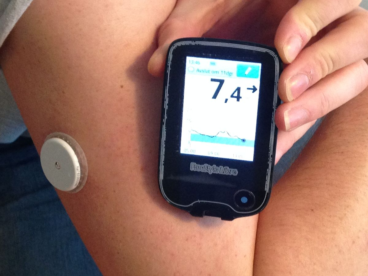 Abbott Freestyle Libre Continuous Glucose Monitor Wikipedia