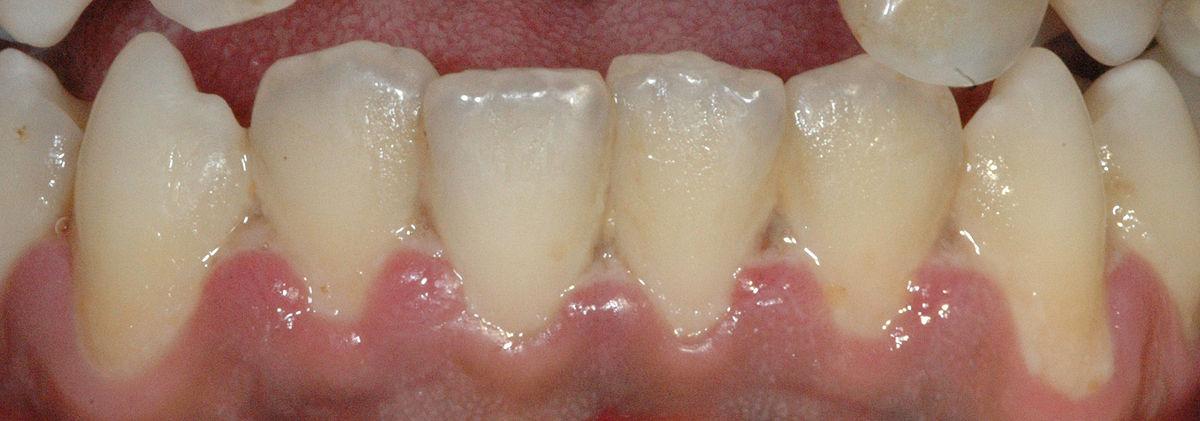 Acute necrotizing ulcerative gingivitis - Wikipedia