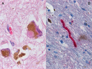 Histological sample of Substantia nigra in Par...
