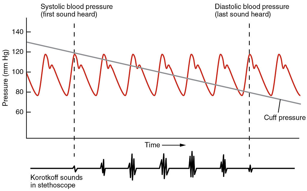 File2111 Blood Pressure Graphjpg - Wikipedia - how to graph blood pressure over time