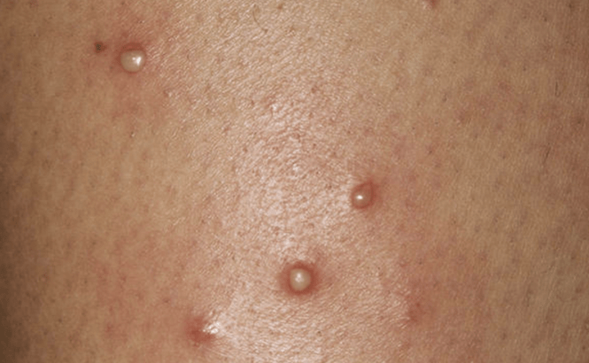 Vaginal Pain Red Sores Could It Be Herpes 3