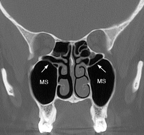 Maxillary Sinus Normal Anatomy  Variants