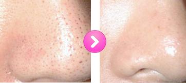 小鼻の毛穴 改善