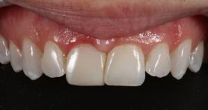 7. Immediate result following gingivectomy of #8 (11). Needs some refinement, which will be addressed after discussion with the periodontist.