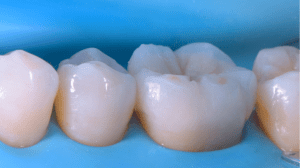Photograph after immediate cementation of lithium disilicate onlay.