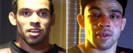 Antes e depois da luta