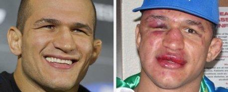 14 lutadores de MMA que ficaram desfigurados após suas lutas