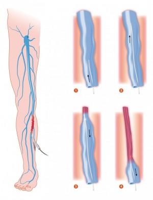下肢静脈瘤レーザー治療模式図