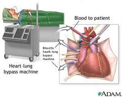 heart-bypass.jpg