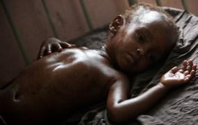 AU-UN SOMALIA