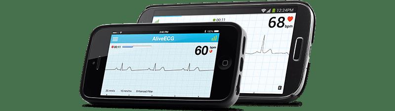 AliveCor's ECG app.