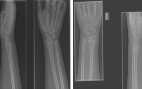 "On the left, something that is not a fracture, but the radiologist incorrectly said was. ""It's something called a 'multi-segment growth plate,' which a lot of radiologists aren't familiar with,"" Enlitic's Jeremy Howard says. On the right, a fracture that a radiologist couldn't find but Enlitic could."