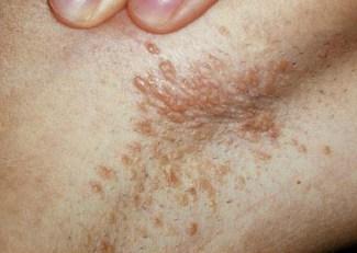 Verrugas Genitales en el Ano