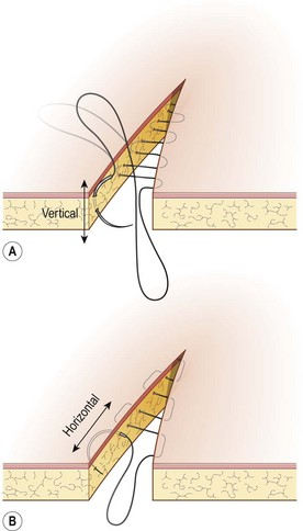 Suturing techniques and common surgical procedures Veterian Key