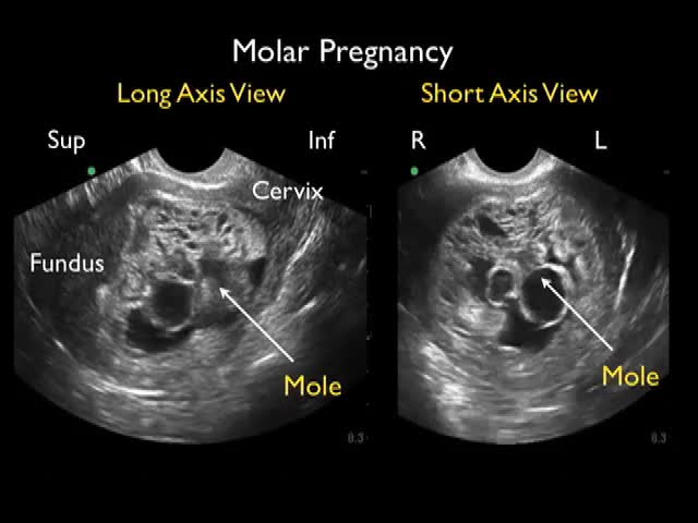 WJEM_Molar_Pregnancy_Video