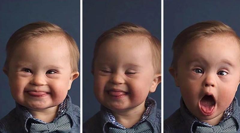 После того, как рекламное агентство отказало принимать фотографии ребенка с синдромом Дауна, его мать пытается добиться справедливости через соцсети.