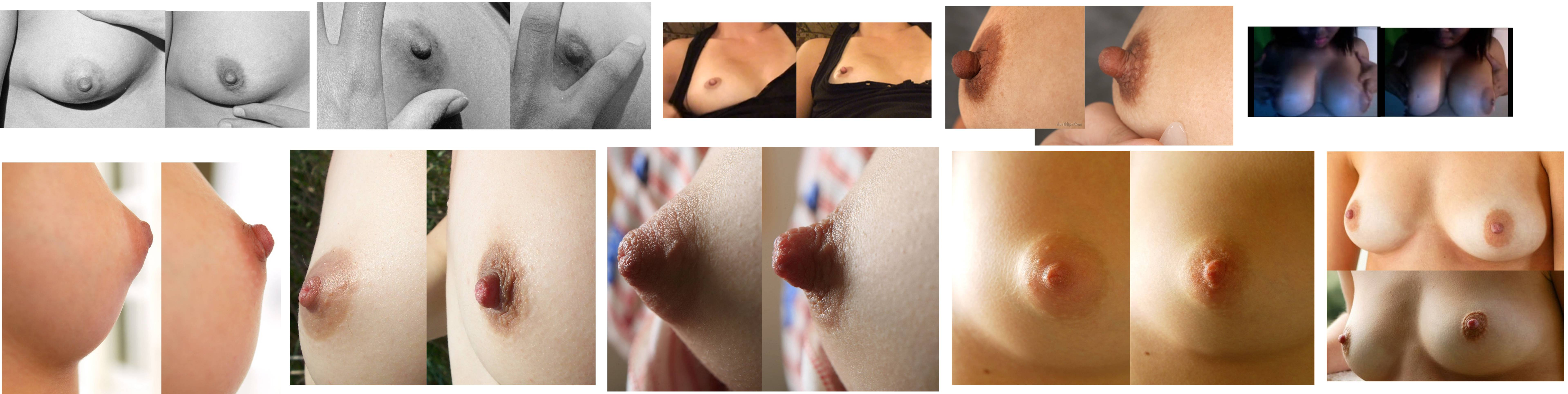 inflation boobs before and after