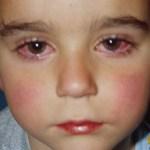 Ojos rojos en los niños