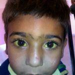 ¿Por qué los ojos se ponen amarillos?