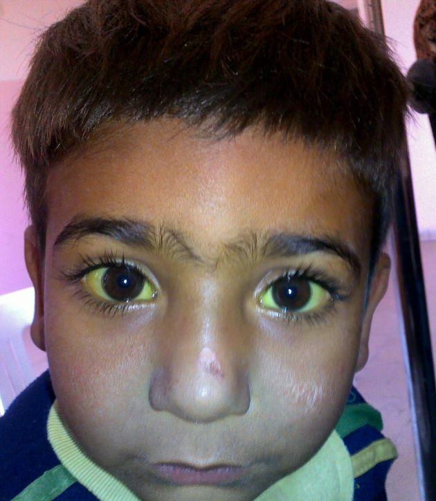 Por-que-los-ojos-se-ponen-amarillos