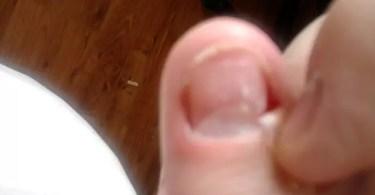 640px-dcfb111s_fingernail_fungus_onychomycosis