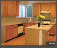 Cabinet Refacing Before After Image-B | WalzCraft