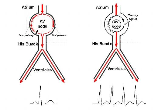 Treatment for AV Nodal Reentrant Tachycardia (AVNRT) in Washington