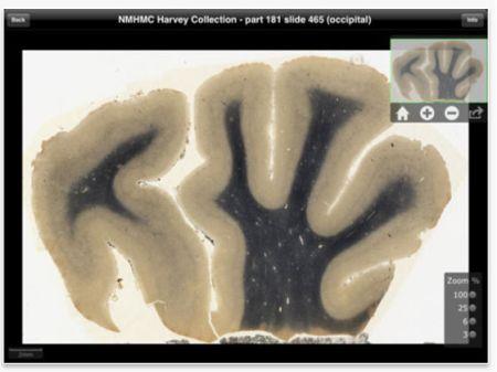 Aplicación del cerebro de Einstein disponible para iPad