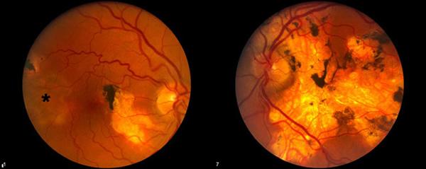 EyeRoundsorg Serpiginous Choroiditis (Geographic helicoid - Presumed Ocular Histoplasmosis