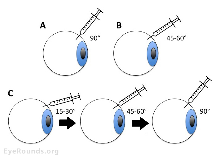 mouse schematic eye