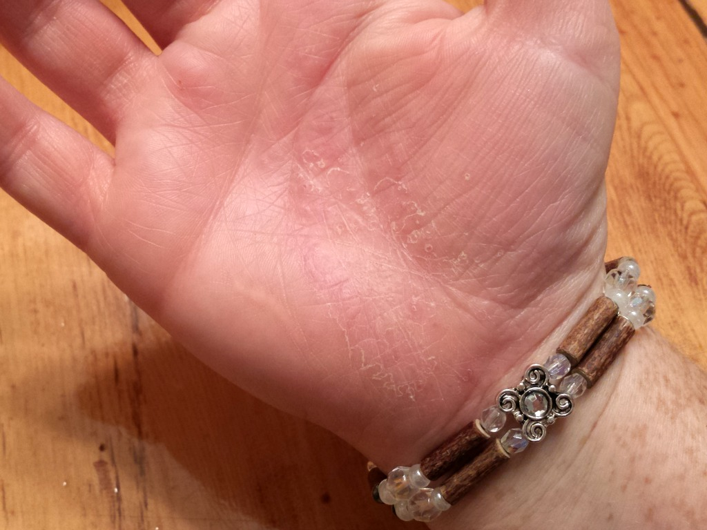 You can see a bit of dry skin on my hand here, but it's so much less than what I would normally be experiencing!