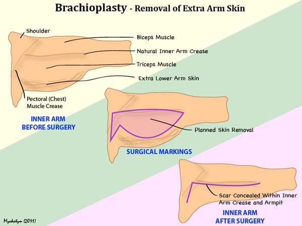 Arm Skin Diagram - Wiring Diagram Progresif