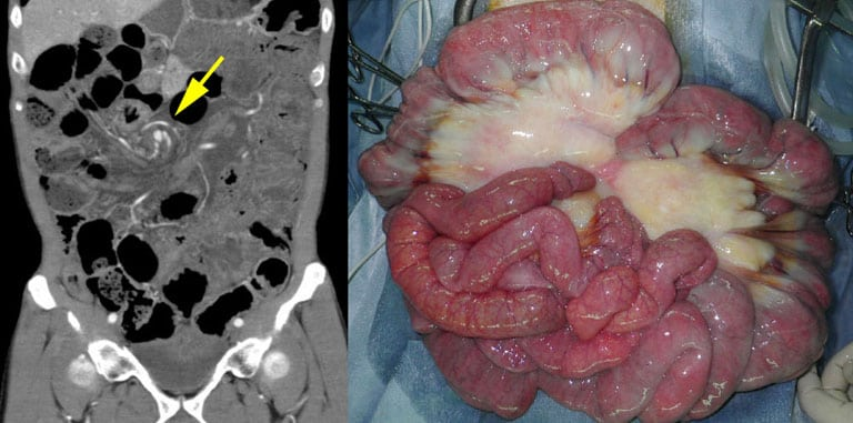 "Laparotomy ""whirl Sign"" Of Primary Small Bowel Volvulus - The Western"