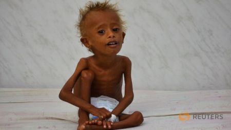 the-wider-image-risk-of-famine-looms-in-yemen-8