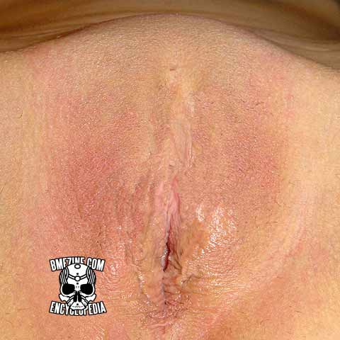 clitoridectomy